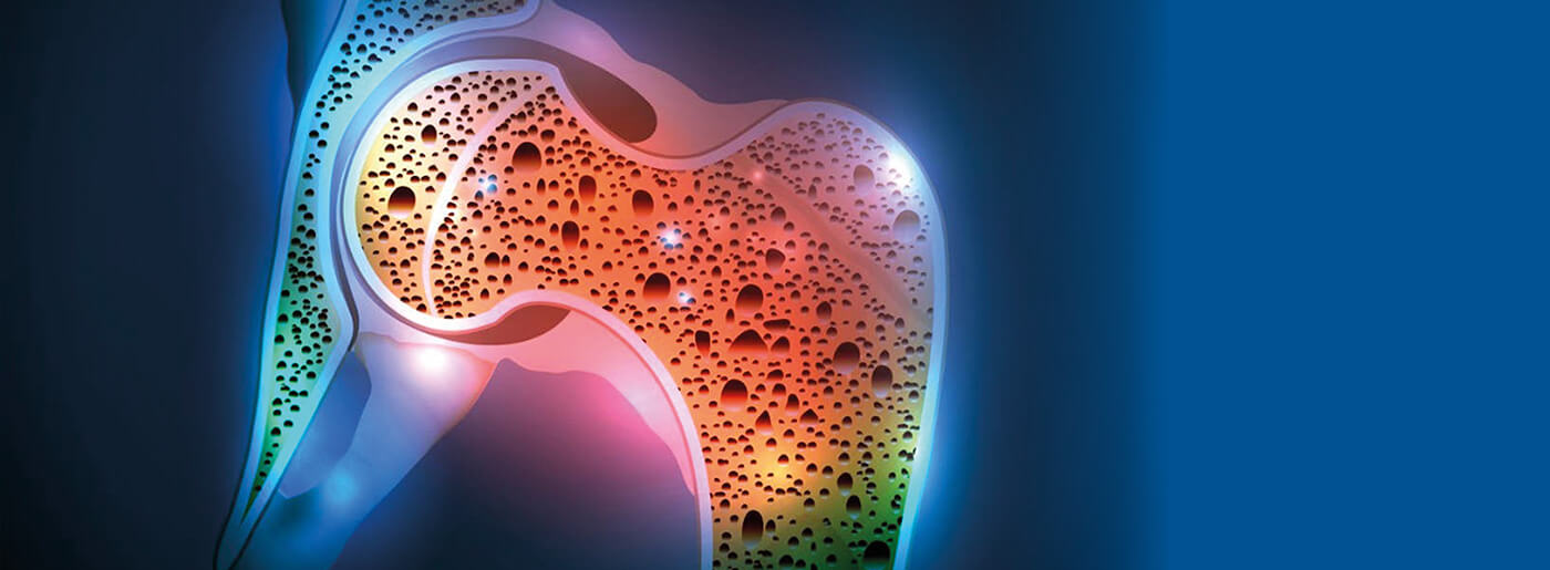 MOC Dexa | Esame osteoporosi | Studio Radiologico Varese