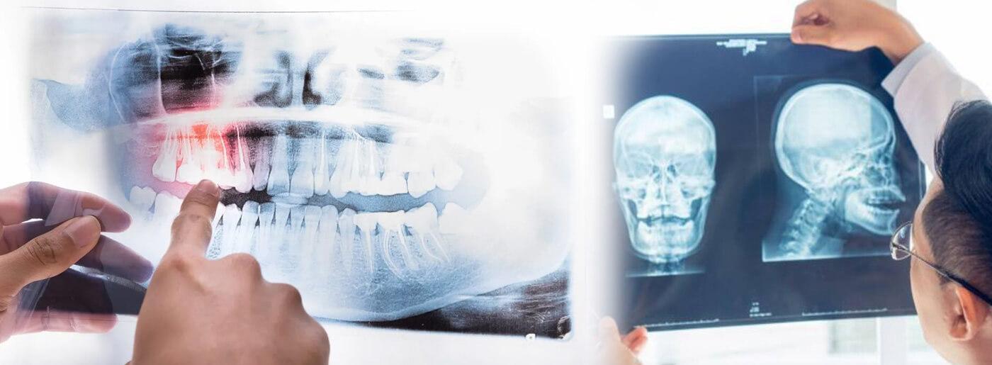 Ortopantomografia e teleradiografia del cranio | Studio Radiologico Varese